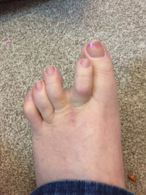 Morton's Neuroma scar one year one